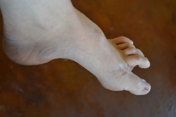 Foot Drop Symptoms, Causes, Diagnosis And Treatment ..